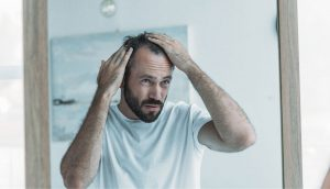 Hair Loss in Men: Causes, Types and Treatment Options