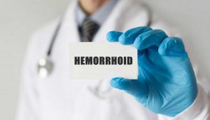 Hemorrhoids: Going Through the Motions