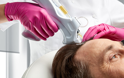 hair loss in men 4 mfine