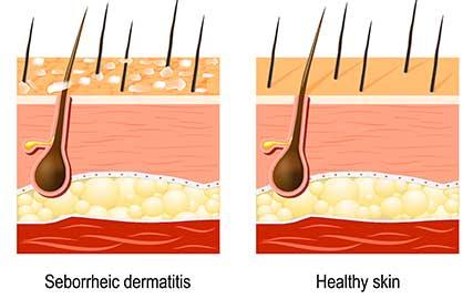 dandruff treatment scalp type mfine