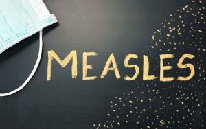 Measles: Deadly if not treated