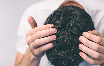 dandruff treatment causes mfine