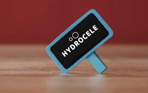 Suffering from Pain Down There? It Could be Hydrocele