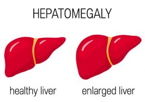 Non-Alcoholic Fatty Liver Disease symptoms