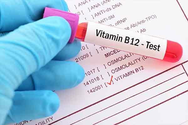 vitamin b12 health tests mfine