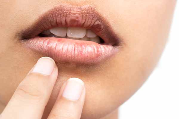 Dry mouth dental problems mfine