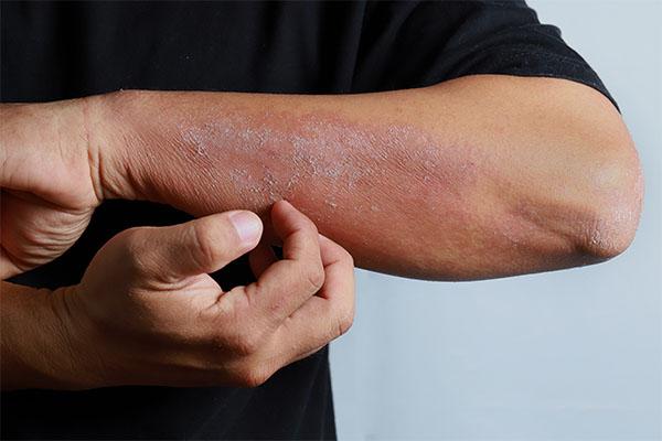 spring illnesses eczema mfine