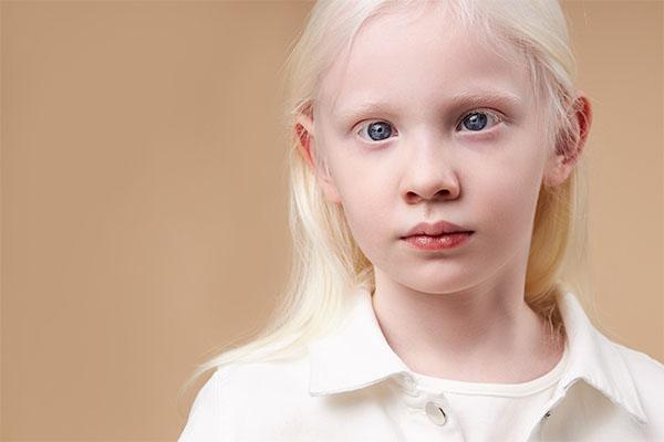 Очен албинизам - состојби на очите