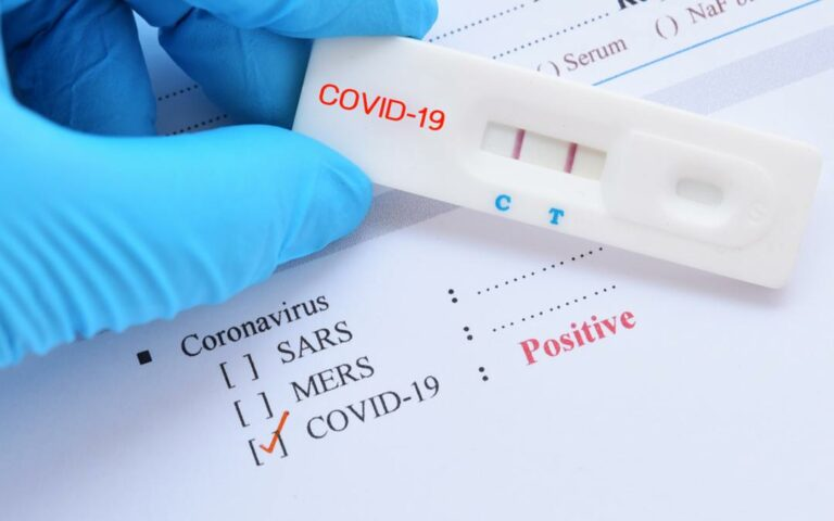 10 Things To Do When You Test Positive For COVID-19