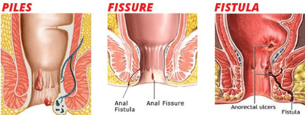 A vaginal fissure what is Posterior Fourchette