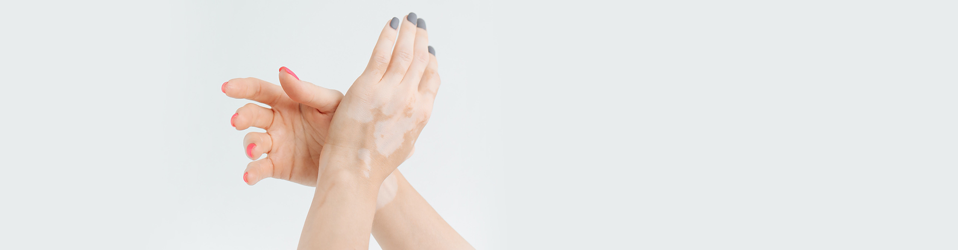 Is Vitiligo Contagious in India? Demystifying the Fact from the Myth